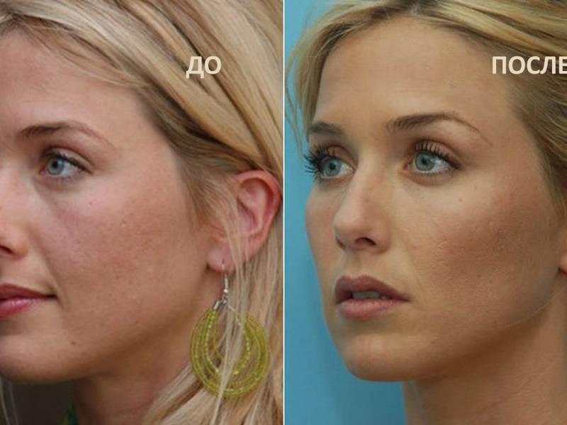 фото до и после - скулы гиалуроновой кислотой