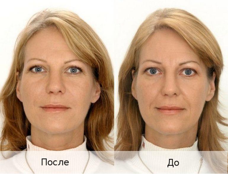 фото до и после инъекций гиалуроновой кислоты