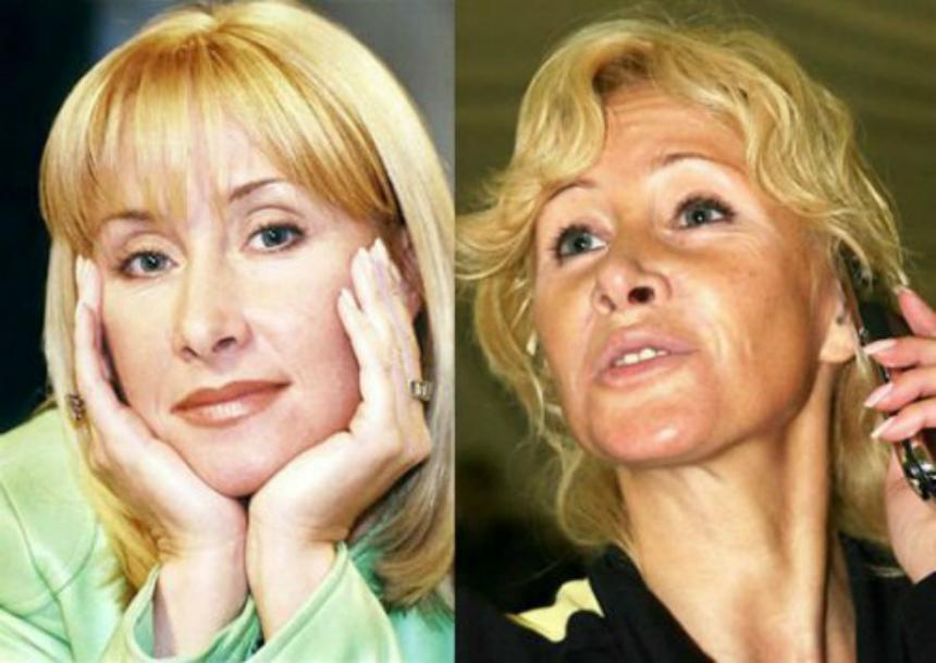 фото неудачной пластики звезд до и после говорить благотворном влиянии