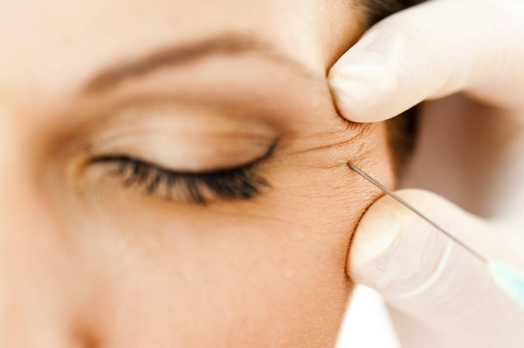 Отзывы косметологов и пациентов об инъекциях Диспорт: фото до и после